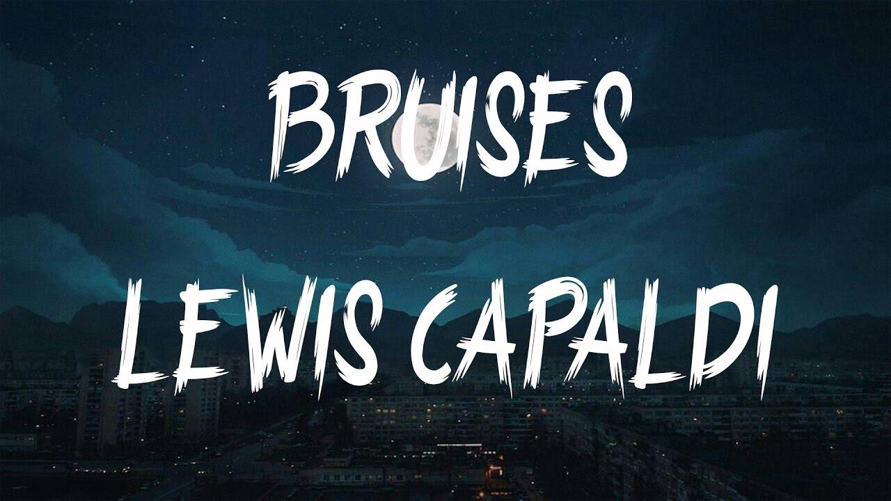 Lewis Capaldi – Bruises